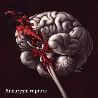 An introduction to brain aneurysms | Brain Book